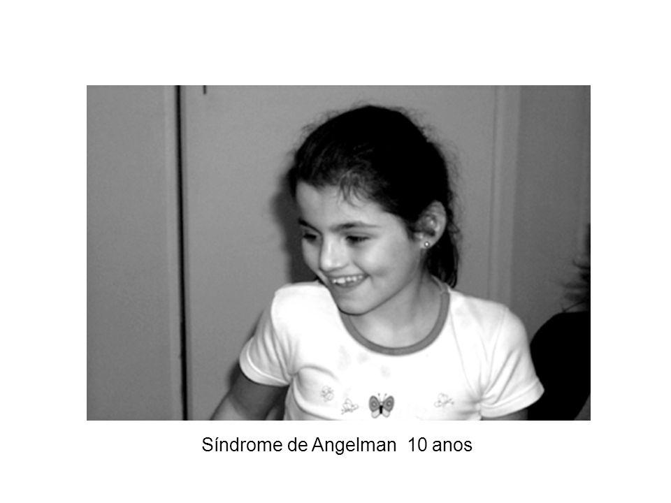 Síndrome de Angelman 13 anos