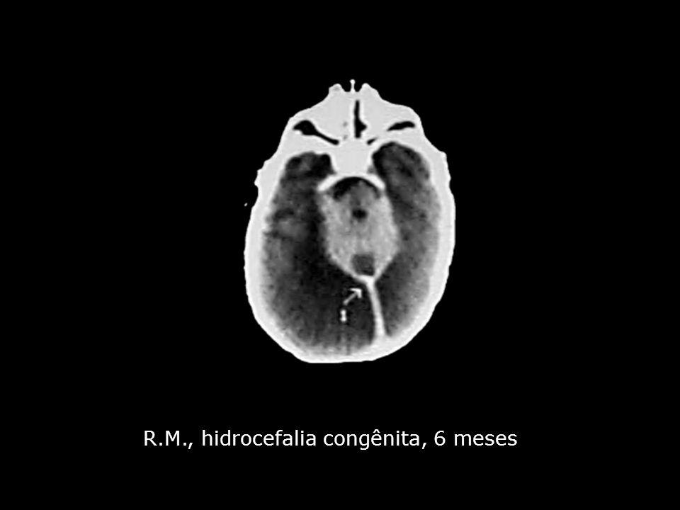 R.M., hidrocefalia congênita, 6 meses
