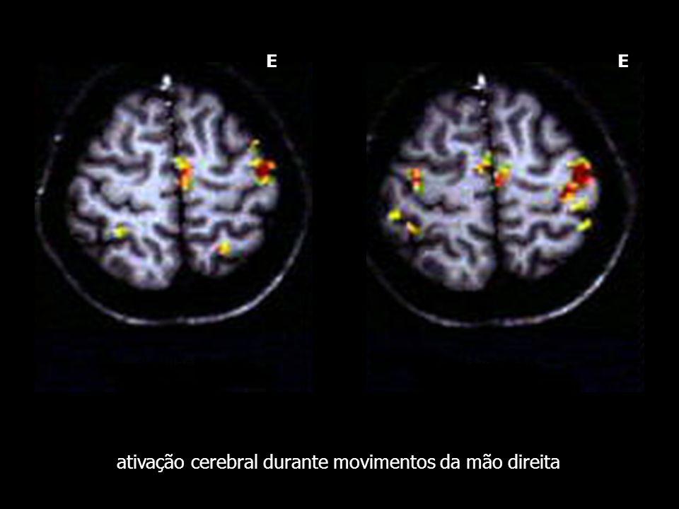 ativação cerebral durante movimentos da mão direita simulação execução E E
