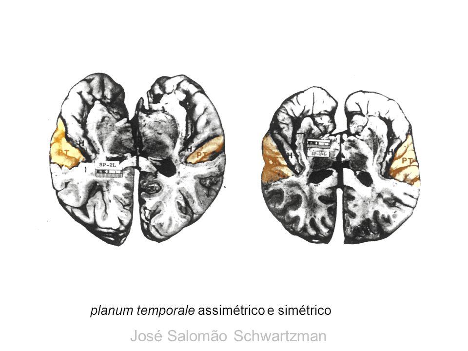 planum temporale assimétrico e simétrico José Salomão Schwartzman