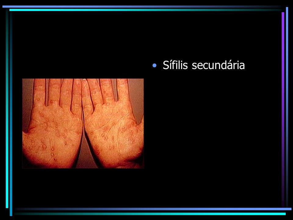 Sífilis secundária