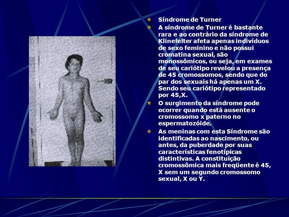 Síndrome de Turner A síndrome de Turner é bastante rara e ao contrário da síndrome de Klinefelter afeta apenas indivíduos de sexo feminino e não possu