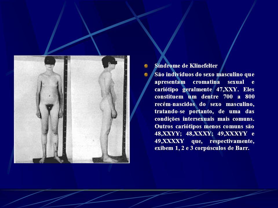 Síndrome de Klinefelter São indivíduos do sexo masculino que apresentam cromatina sexual e cariótipo geralmente 47,XXY. Eles constituem um dentre 700