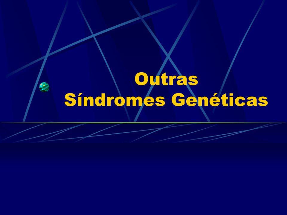 Outras Síndromes Genéticas