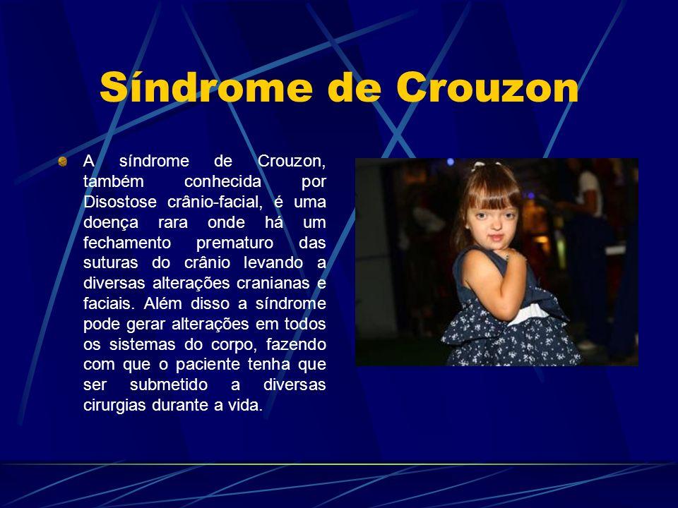 Síndrome de Crouzon A síndrome de Crouzon, também conhecida por Disostose crânio-facial, é uma doença rara onde há um fechamento prematuro das suturas