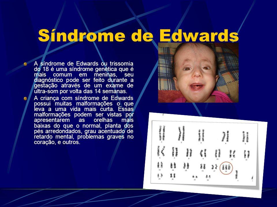 Síndrome de Edwards A síndrome de Edwards ou trissomia do 18 é uma síndrome genética que é mais comum em meninas, seu diagnóstico pode ser feito duran