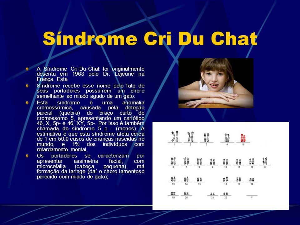 Síndrome Cri Du Chat A Síndrome Cri-Du-Chat foi originalmente descrita em 1963 pelo Dr. Lejeune na França. Esta Síndrome recebe esse nome pelo fato de