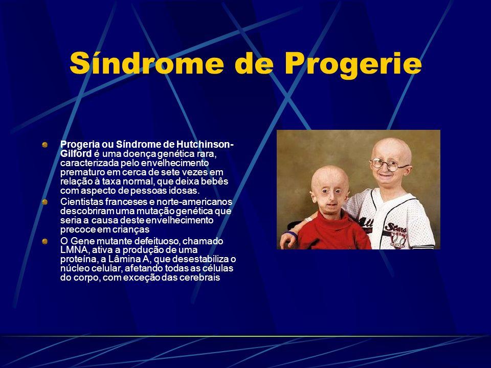 Síndrome de Progerie Progeria ou Síndrome de Hutchinson- Gilford é uma doença genética rara, caracterizada pelo envelhecimento prematuro em cerca de s