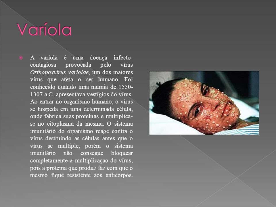 A varíola é uma doença infecto- contagiosa provocada pelo vírus Orthopoxvírus variolae, um dos maiores vírus que afeta o ser humano. Foi conhecido qua