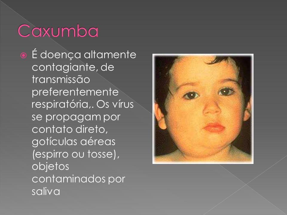O sarampo é uma doença viral, infecto-contagiosa e atinge com mais severidade populações de baixo nível sócio-econômico.
