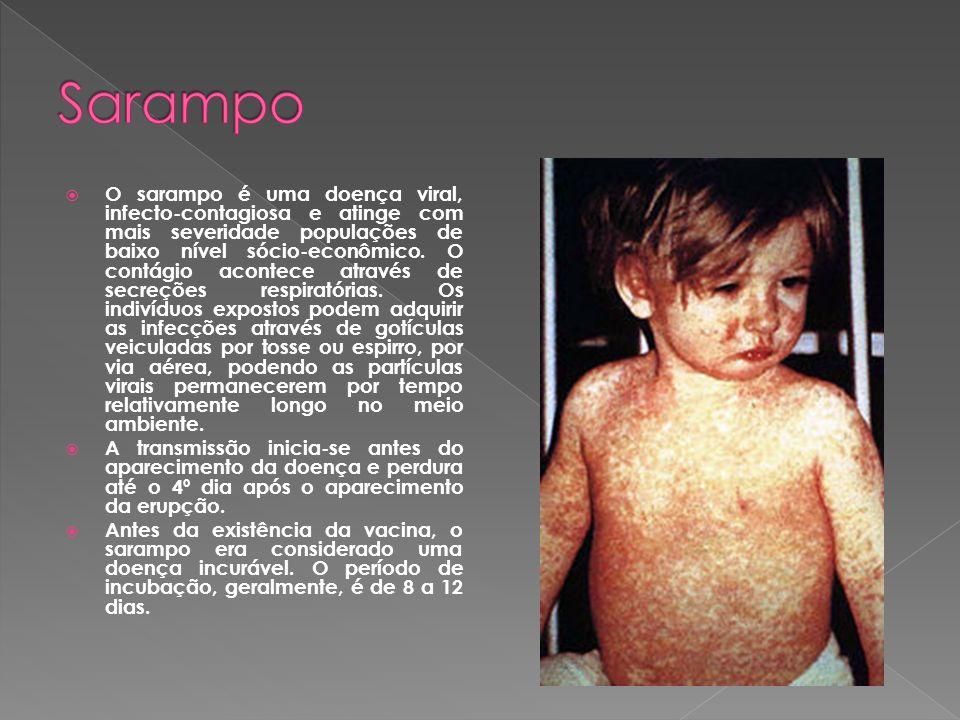 O sarampo é uma doença viral, infecto-contagiosa e atinge com mais severidade populações de baixo nível sócio-econômico. O contágio acontece através d
