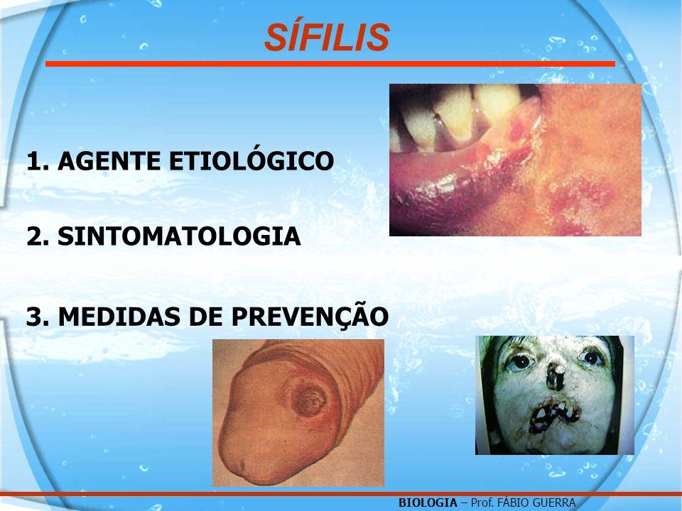 BIOLOGIA – Prof. FÁBIO GUERRA 1. AGENTE ETIOLÓGICO 2. SINTOMATOLOGIA 3. MEDIDAS DE PREVENÇÃO SÍFILIS