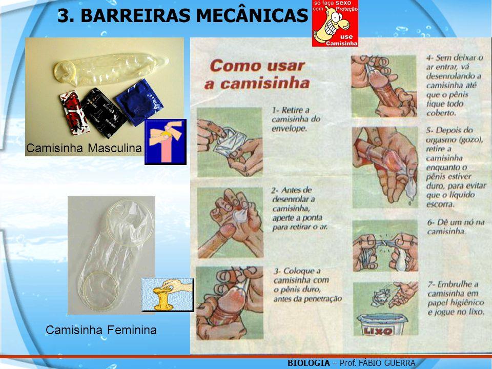BIOLOGIA – Prof. FÁBIO GUERRA 3. BARREIRAS MECÂNICAS Camisinha Masculina Camisinha Feminina