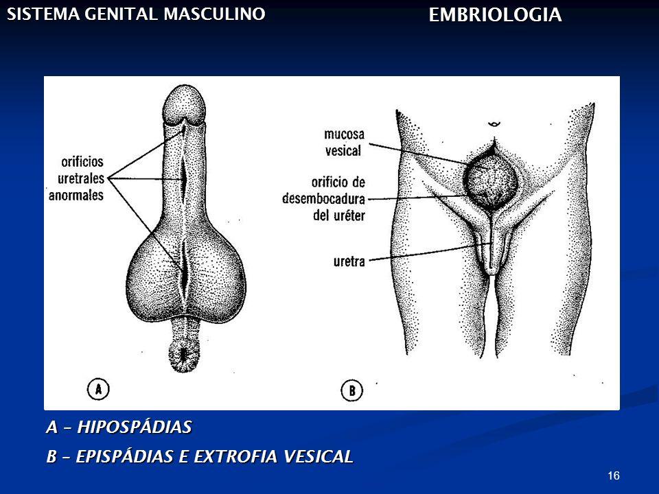 16 SISTEMA GENITAL MASCULINO EMBRIOLOGIA A – HIPOSPÁDIAS B – EPISPÁDIAS E EXTROFIA VESICAL