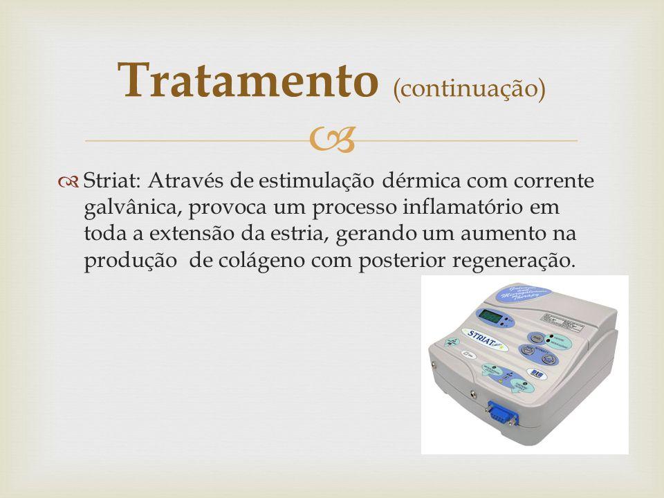 Striat: Através de estimulação dérmica com corrente galvânica, provoca um processo inflamatório em toda a extensão da estria, gerando um aumento na pr
