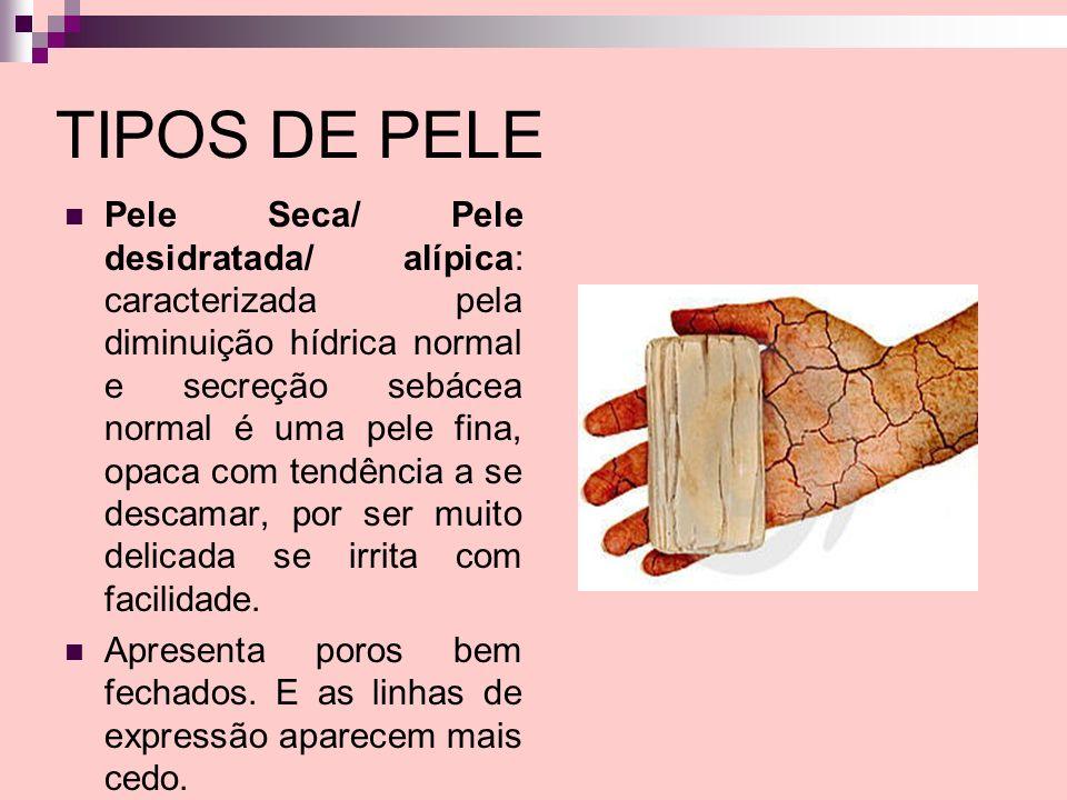 TIPOS DE PELE Pele Seca/ Pele desidratada/ alípica: caracterizada pela diminuição hídrica normal e secreção sebácea normal é uma pele fina, opaca com