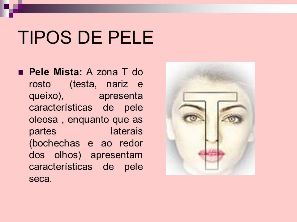 TIPOS DE PELE Pele Mista: A zona T do rosto (testa, nariz e queixo), apresenta características de pele oleosa, enquanto que as partes laterais (bochec