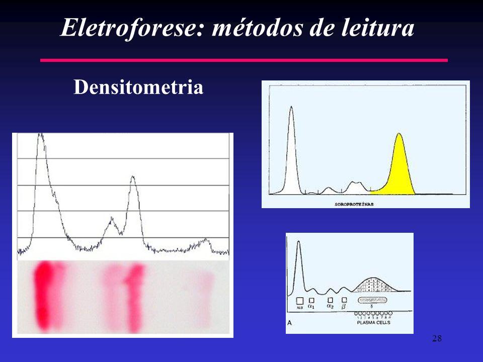 28 Eletroforese: métodos de leitura Densitometria