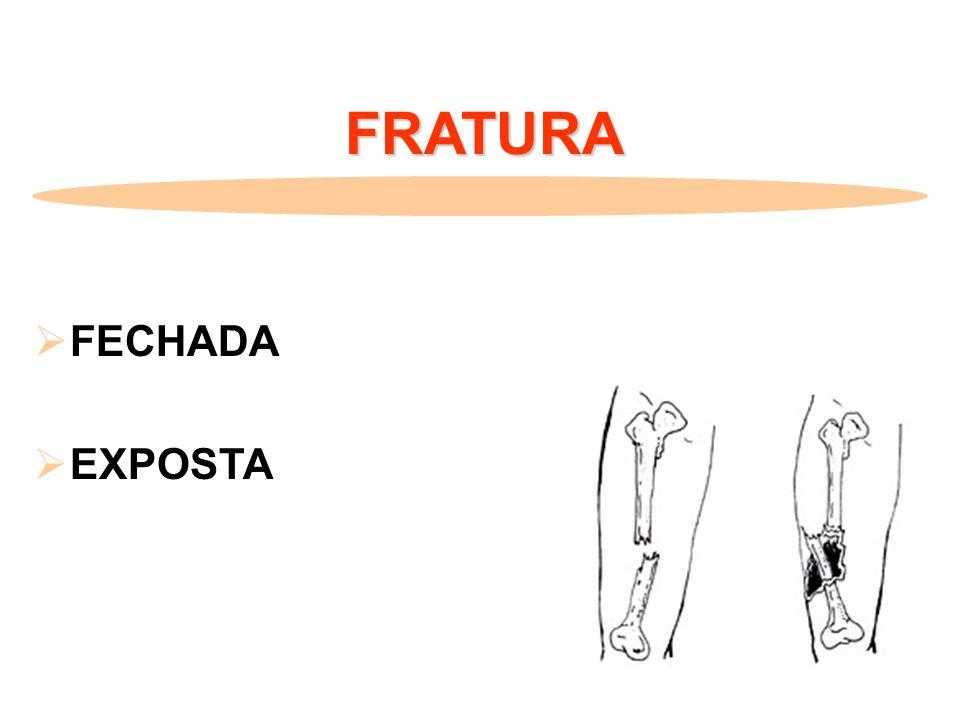 FRATURA FECHADA EXPOSTA