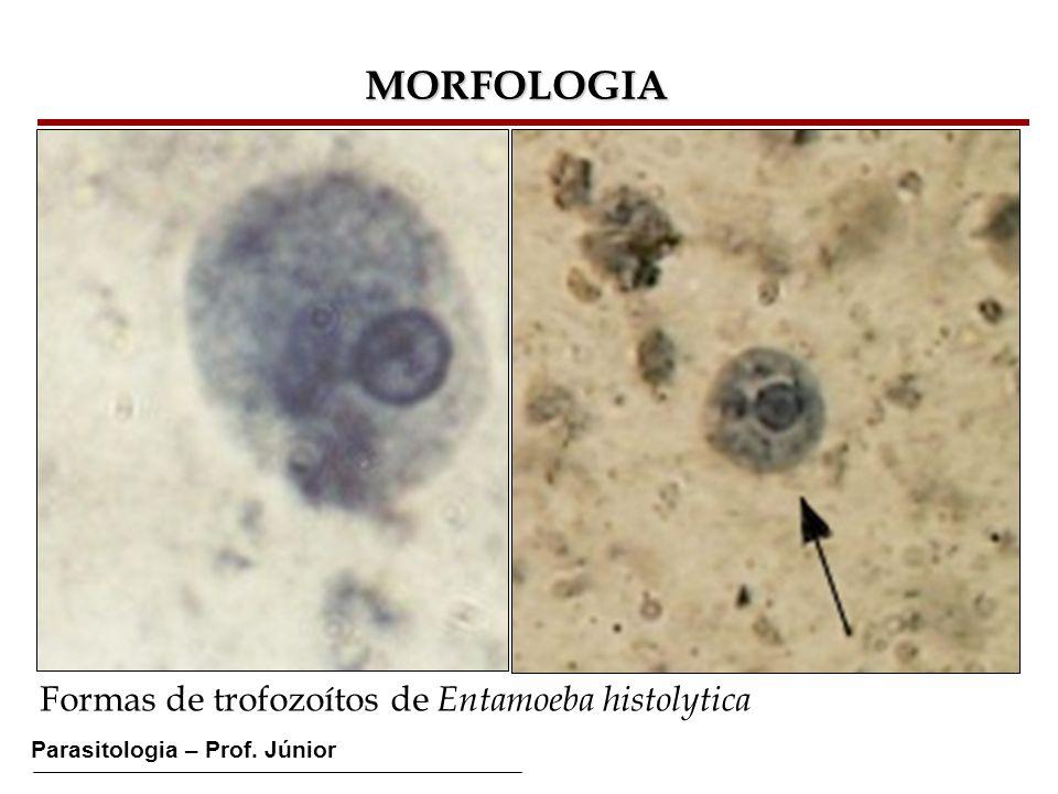 Parasitologia – Prof. Júnior MORFOLOGIA Formas de trofozoítos de Entamoeba histolytica