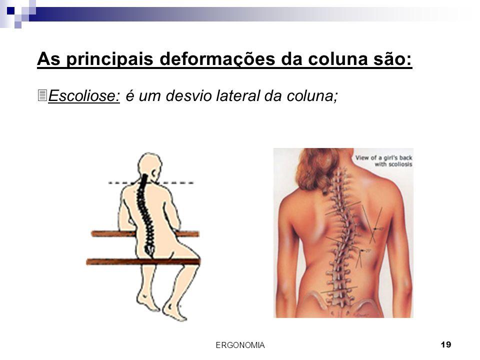 ERGONOMIA 19 As principais deformações da coluna são: 3Escoliose: é um desvio lateral da coluna;