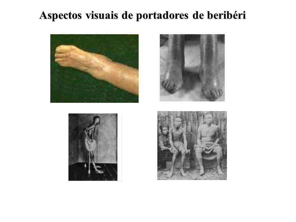 Aspectos visuais de portadores de beribéri