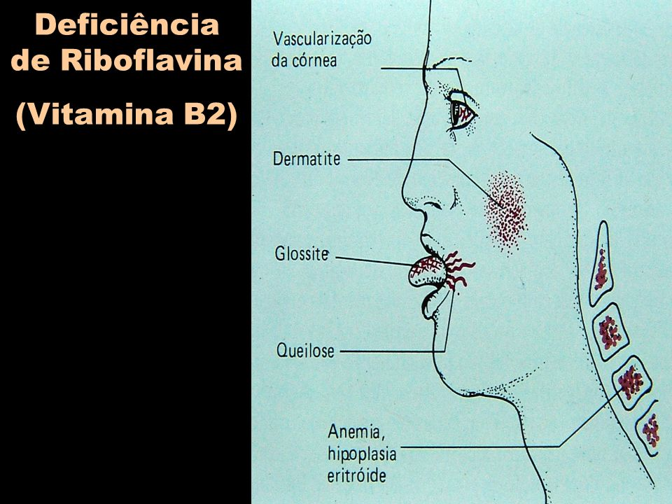 Deficiência de Riboflavina (Vitamina B2)
