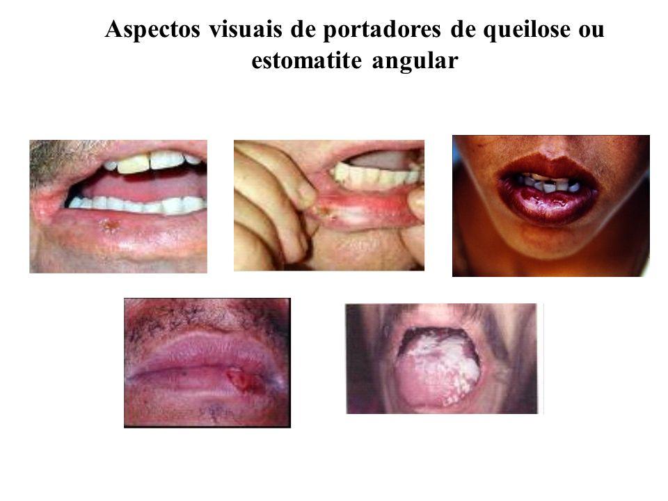 Aspectos visuais de portadores de queilose ou estomatite angular