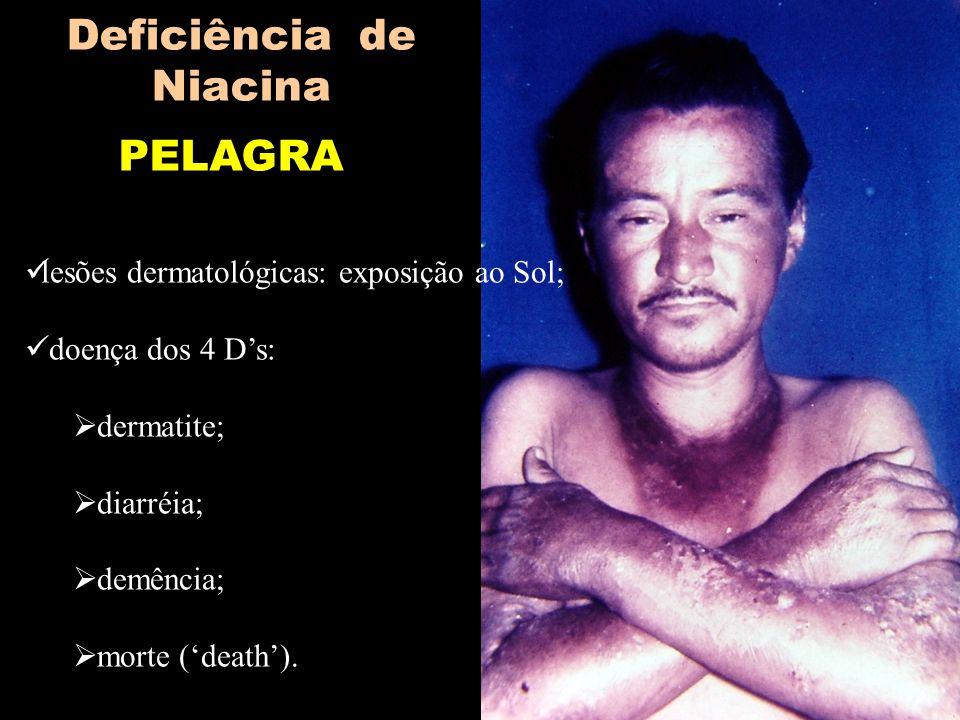 PELAGRA Deficiência de Niacina lesões dermatológicas: exposição ao Sol; doença dos 4 Ds: dermatite; diarréia; demência; morte (death).