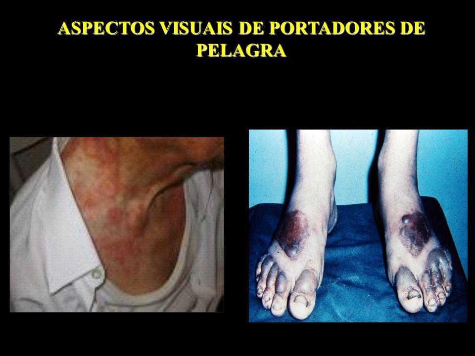 ASPECTOS VISUAIS DE PORTADORES DE PELAGRA