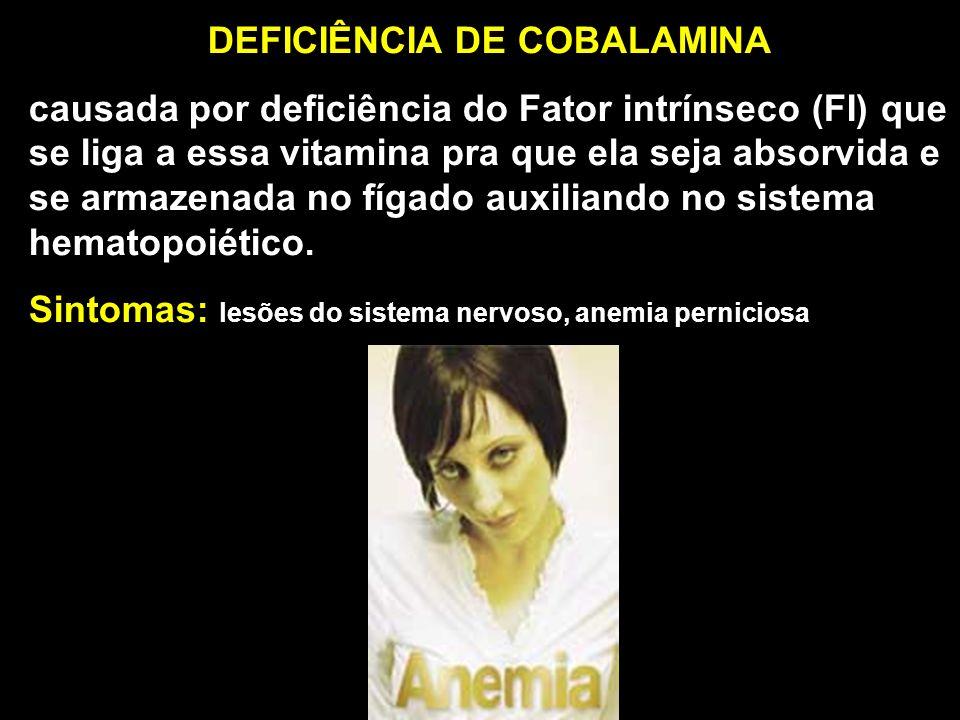 DEFICIÊNCIA DE COBALAMINA causada por deficiência do Fator intrínseco (FI) que se liga a essa vitamina pra que ela seja absorvida e se armazenada no f