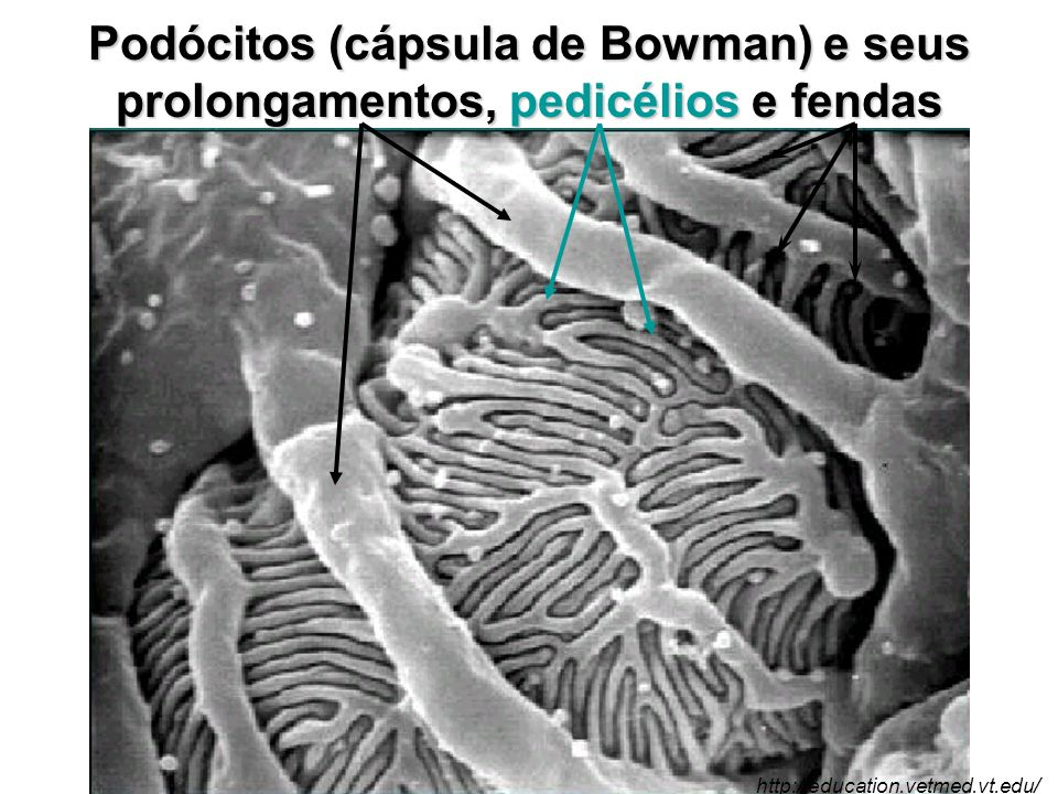 Podócitos (cápsula de Bowman) e seus prolongamentos, pedicélios e fendas http://education.vetmed.vt.edu/