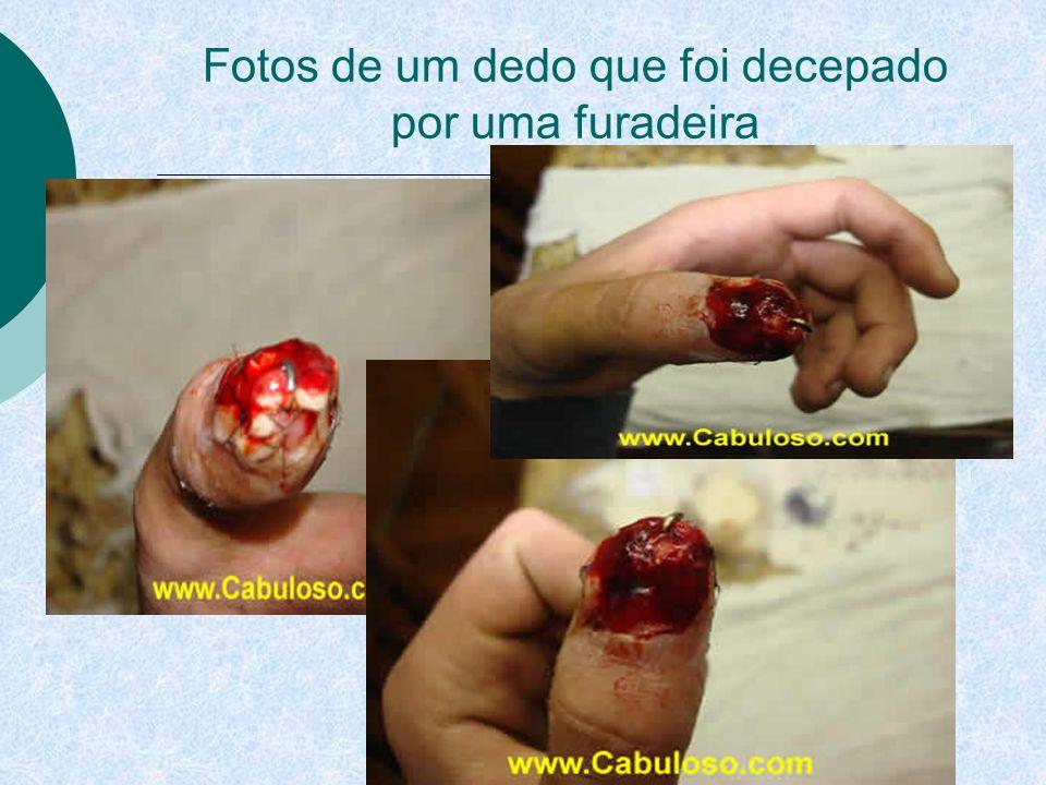 Fotos de um dedo que foi decepado por uma furadeira
