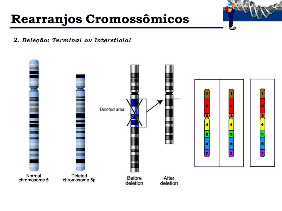 Rearranjos Cromossômicos 2. Deleção: Terminal ou Intersticial
