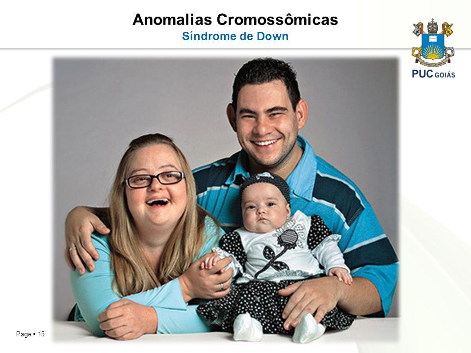 Page 15 Anomalias Cromossômicas Síndrome de Down