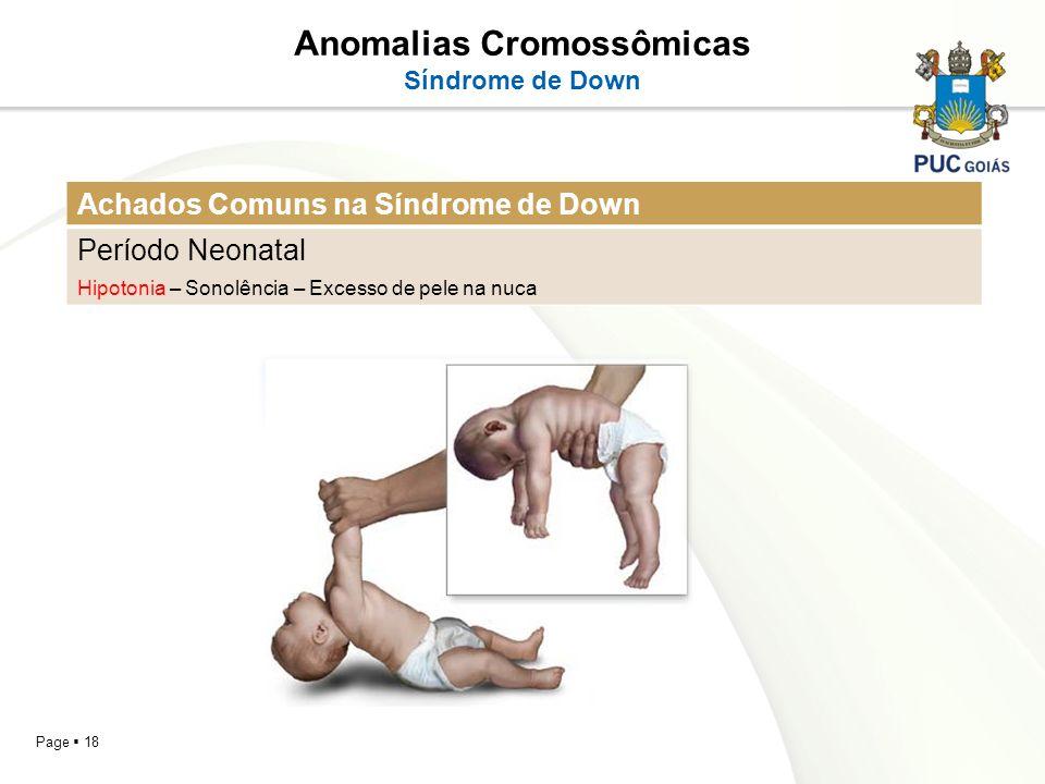 Page 18 Anomalias Cromossômicas Síndrome de Down Achados Comuns na Síndrome de Down Período Neonatal Hipotonia – Sonolência – Excesso de pele na nuca