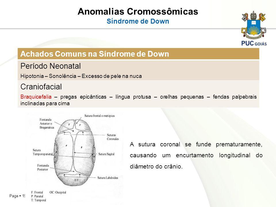 Page 19 Anomalias Cromossômicas Síndrome de Down Achados Comuns na Síndrome de Down Período Neonatal Hipotonia – Sonolência – Excesso de pele na nuca