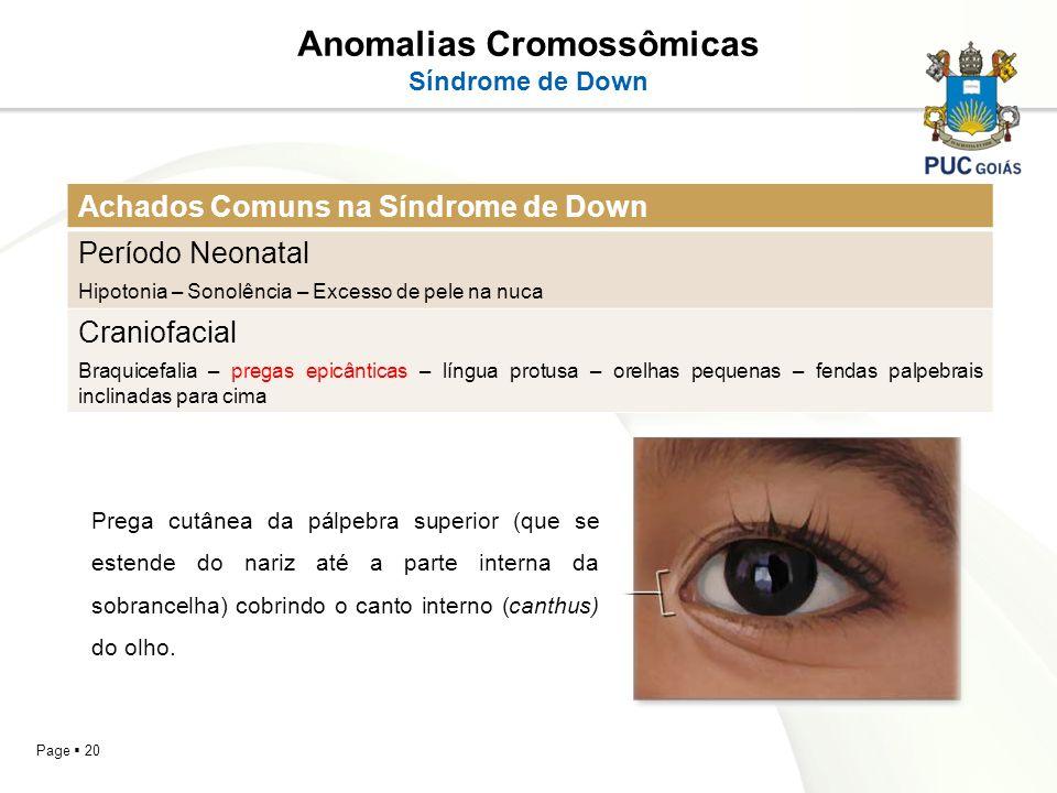 Page 20 Anomalias Cromossômicas Síndrome de Down Achados Comuns na Síndrome de Down Período Neonatal Hipotonia – Sonolência – Excesso de pele na nuca