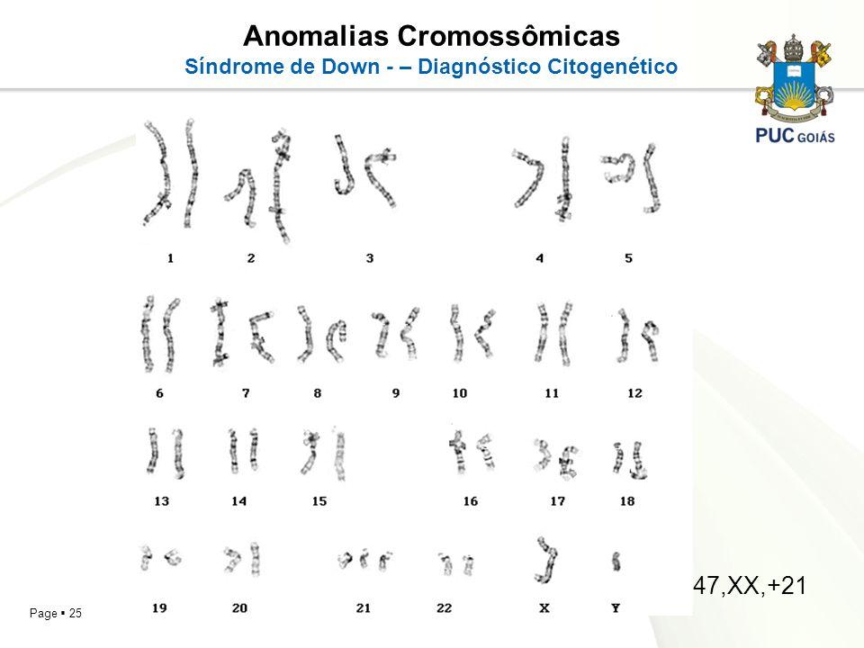 Page 25 Anomalias Cromossômicas Síndrome de Down - – Diagnóstico Citogenético 47,XX,+21