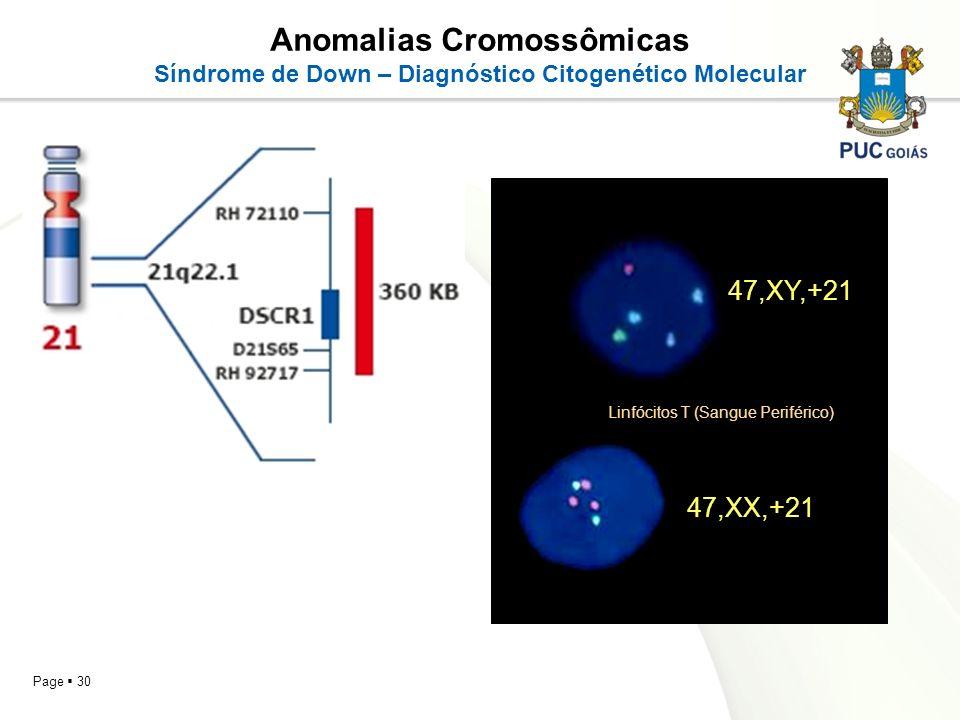 Page 30 Anomalias Cromossômicas Síndrome de Down – Diagnóstico Citogenético Molecular 47,XY,+21 47,XX,+21 Linfócitos T (Sangue Periférico)