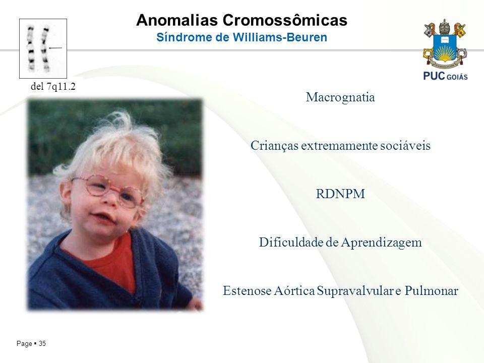 Page 35 Anomalias Cromossômicas Síndrome de Williams-Beuren Macrognatia Crianças extremamente sociáveis RDNPM Dificuldade de Aprendizagem Estenose Aór