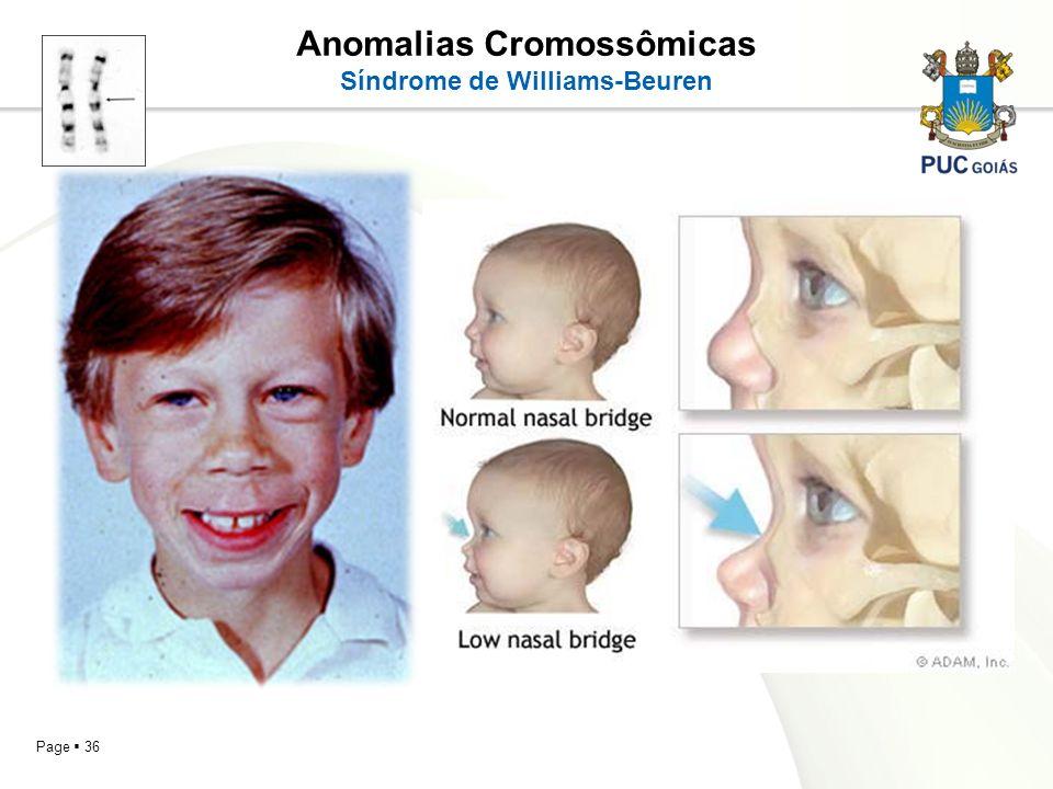 Page 36 Anomalias Cromossômicas Síndrome de Williams-Beuren