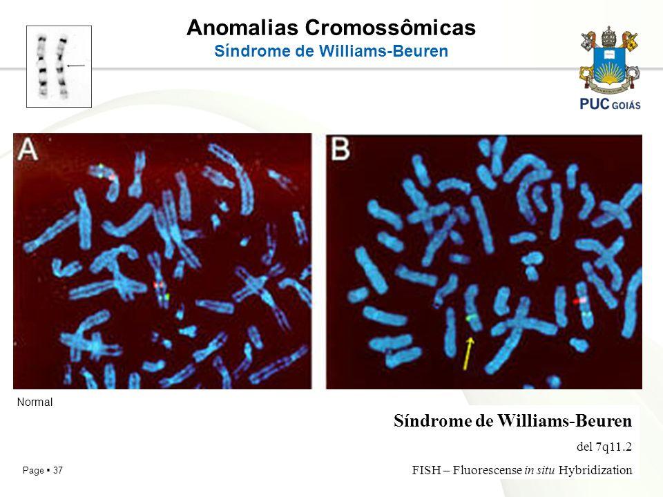 Page 37 Anomalias Cromossômicas Síndrome de Williams-Beuren del 7q11.2 FISH – Fluorescense in situ Hybridization Normal