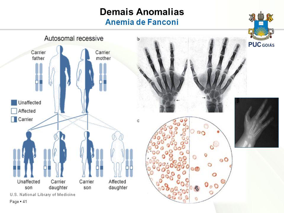 Page 41 Demais Anomalias Anemia de Fanconi