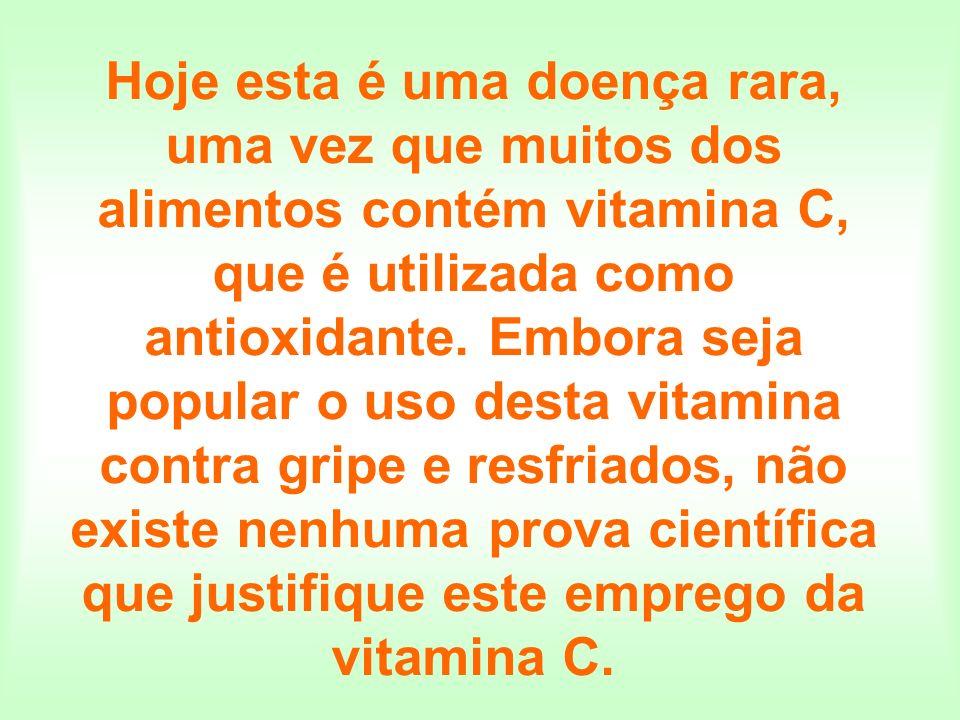 Hoje esta é uma doença rara, uma vez que muitos dos alimentos contém vitamina C, que é utilizada como antioxidante. Embora seja popular o uso desta vi