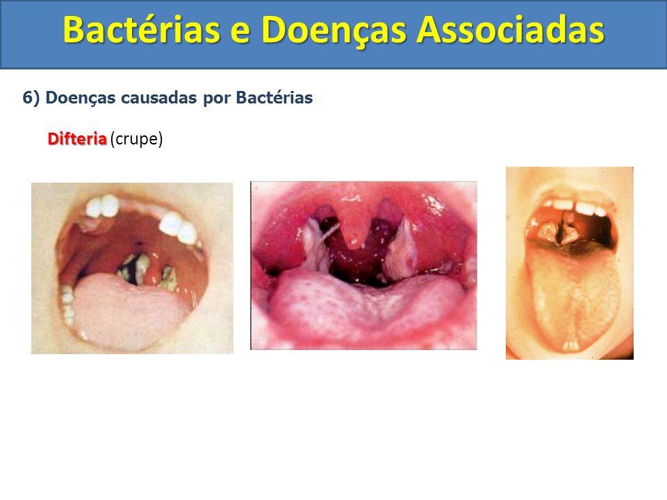 6) Doenças causadas por Bactérias Difteria Difteria (crupe) Bactérias e Doenças Associadas