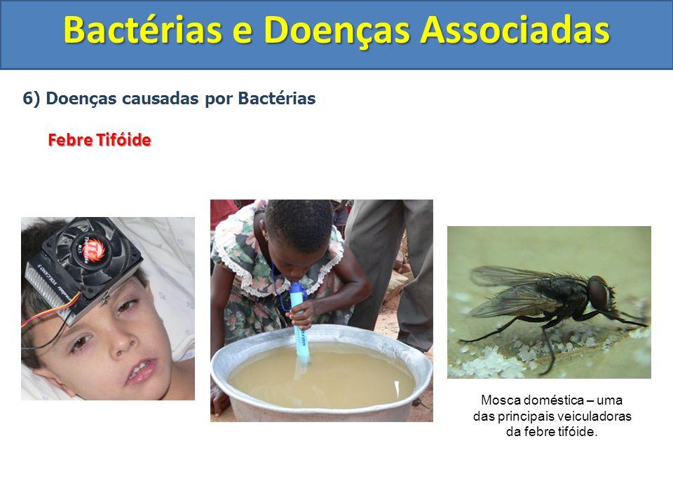 6) Doenças causadas por Bactérias Febre Tifóide Bactérias e Doenças Associadas Mosca doméstica – uma das principais veiculadoras da febre tifóide.