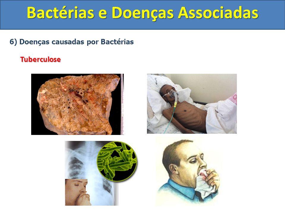 6) Doenças causadas por BactériasTuberculose Bactérias e Doenças Associadas