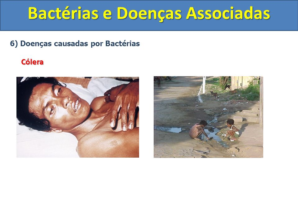 6) Doenças causadas por BactériasCólera Bactérias e Doenças Associadas