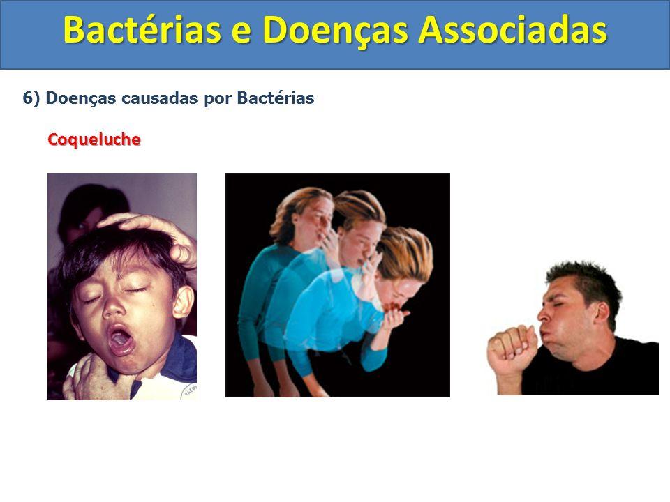 6) Doenças causadas por BactériasCoqueluche Bactérias e Doenças Associadas